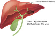 Intrahepatic Cholangiocarcinoma treatments