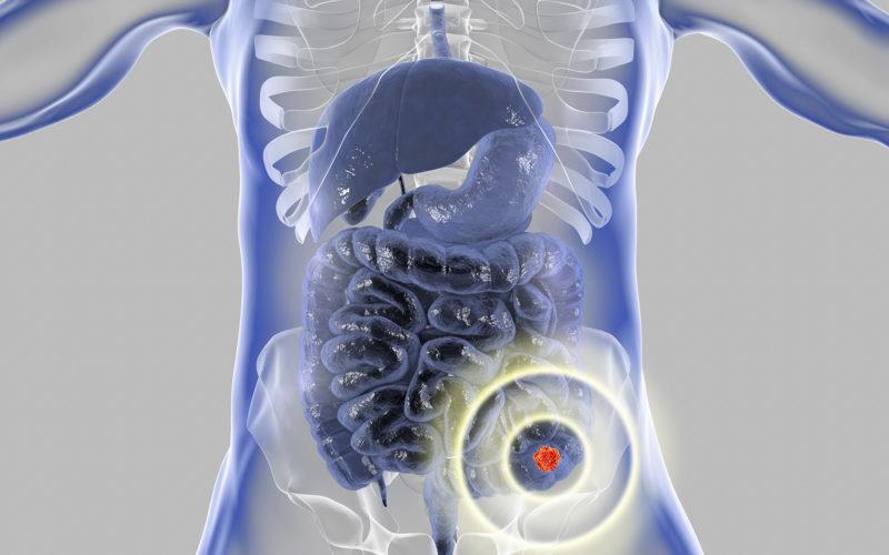 Evolution of Treatment for Liver Metastasis From Colorectal Cancer