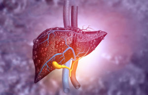 liver operation