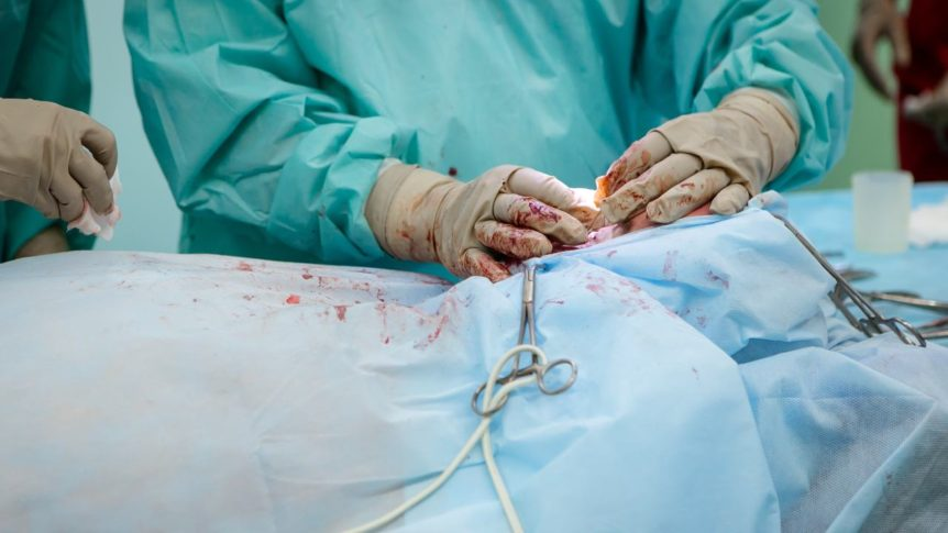 liver surgery technique