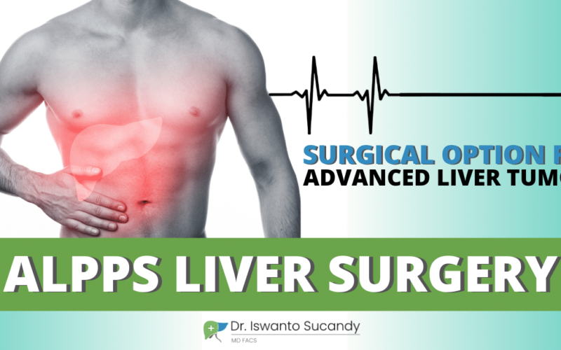 2 Stage ALPPS Liver Surgery. An Available Aggressive Surgical Option for Advanced Liver Tumors