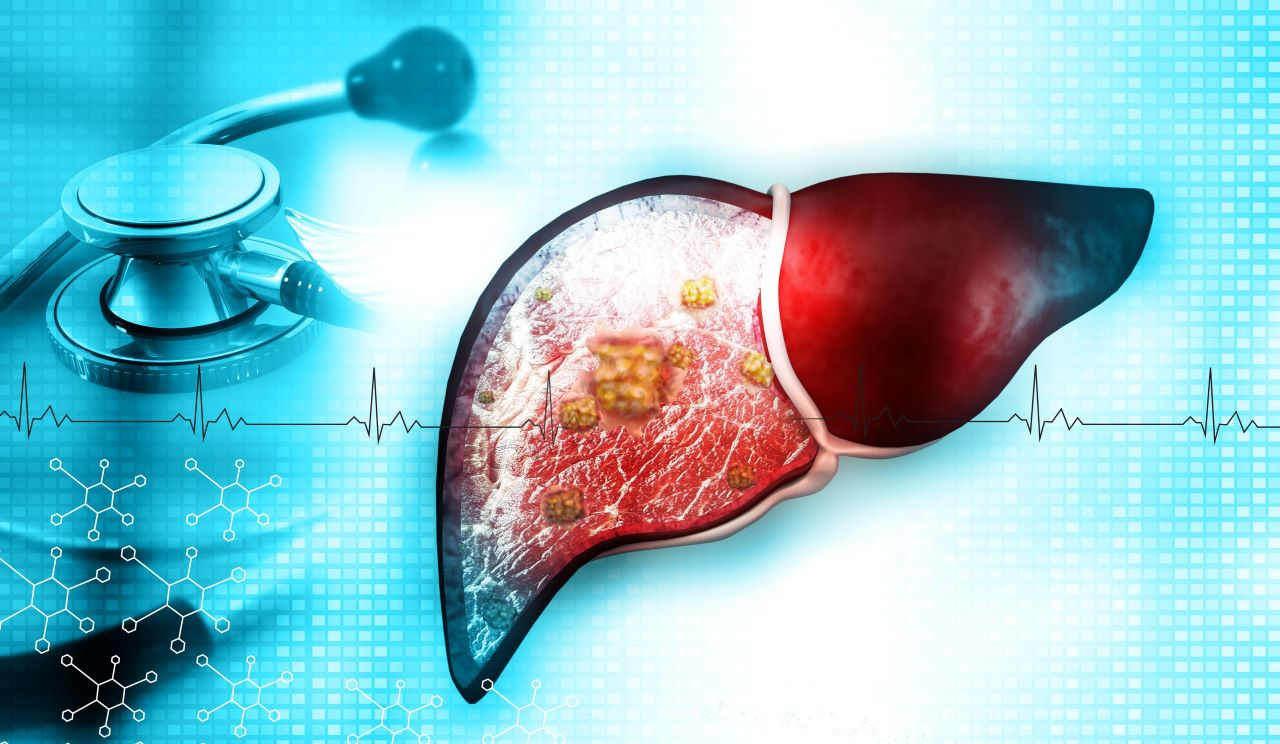 ALPPS liver surgery