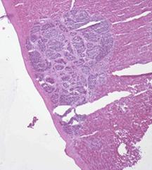 Metastatic Neuroendocrine Tumor Treatment
